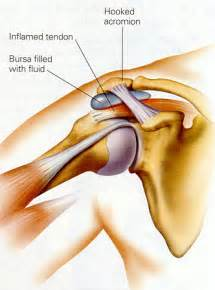 joint impingement syndrome shoulder diagnosis treatment picture 1