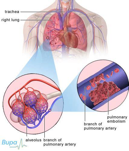 fat burners cause clotting factors picture 19