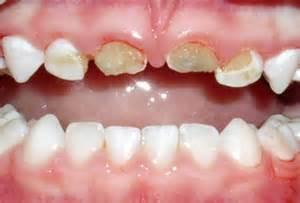childrens teeth and veneers picture 5