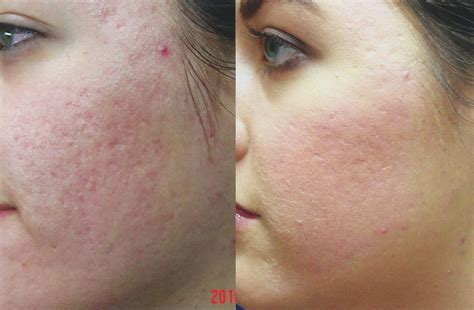 co2 laser for acne scars picture 1