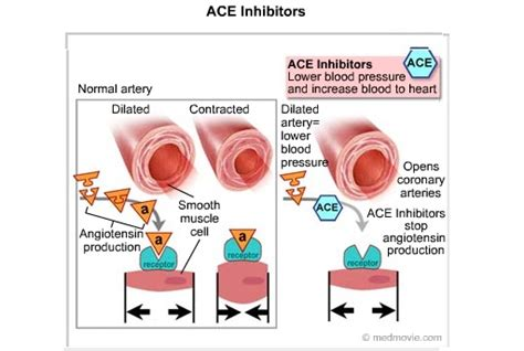 cae inhibitors high cholesterol rct picture 2