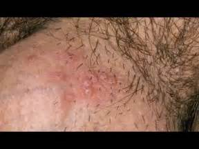 pictures of herpes in the genital area picture 3