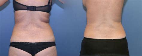 lipo gen advanced weight loss picture 5