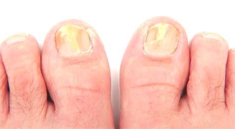 symptoms of toenail fungus picture 1
