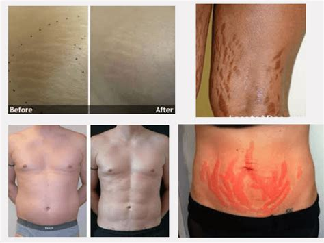 dmso stretch mark removal picture 5