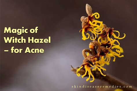 witch hazel is great for acne picture 4