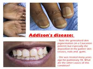 skin symptoms of adrenal disorders picture 1
