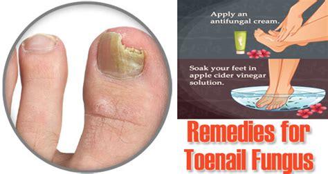 toenail fungus homemade remedy picture 3