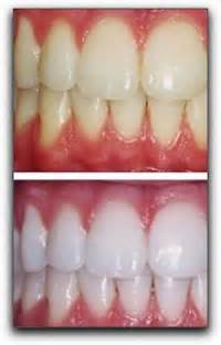 lafayette tooth whitening picture 2