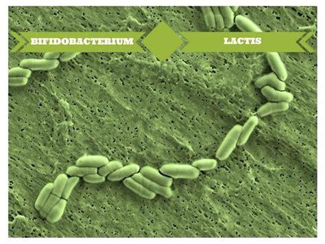 how long do side effects of bifidus regularis picture 5