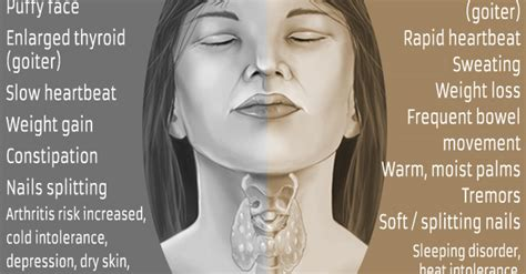 symptoms of hypo active thyroid picture 10