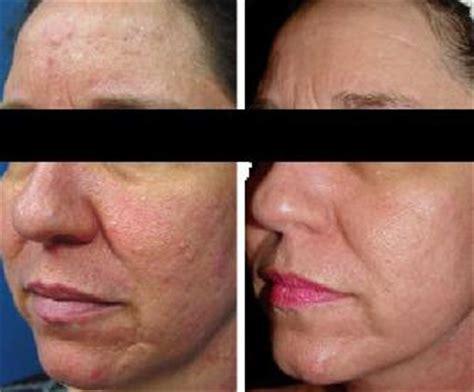 acne scar revision in encino picture 1