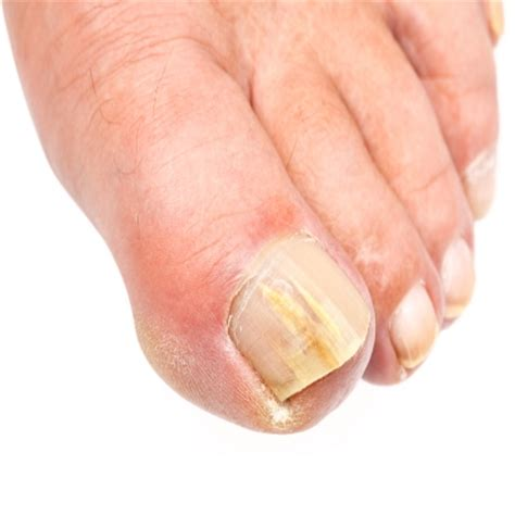 toe fungus picture 11
