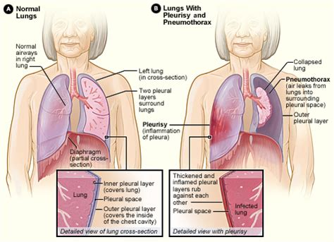 natural remedies to reduce pleural fluid picture 12