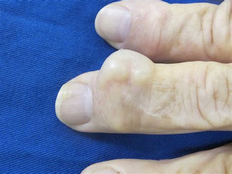 gout in a thumb joint picture 6