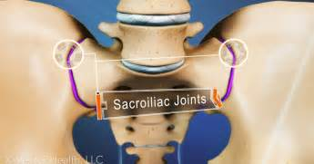 cures for sacraliliac joint picture 21