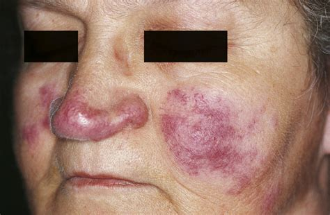 acne and lupas picture 5