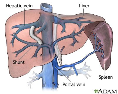 canine cirrhosis of the liver picture 2