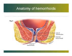 how long hemorrhoids feel after banding picture 3