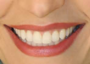 perfect teeth picture 3