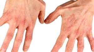clove oil allergic skin reaction symptoms picture 6