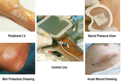 treatment for skin demarcation line picture 3