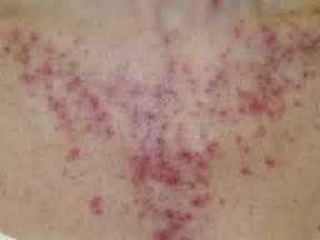 skin cancer on chest picture 11