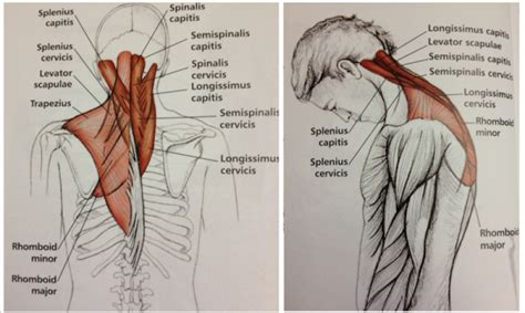 constant muscle spasms neck and shoulders picture 10