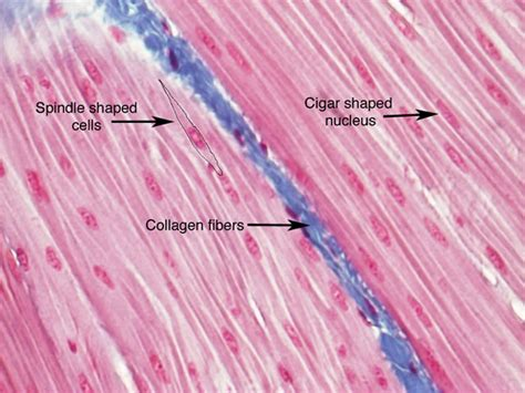 are smooth muscle multinucleated picture 3