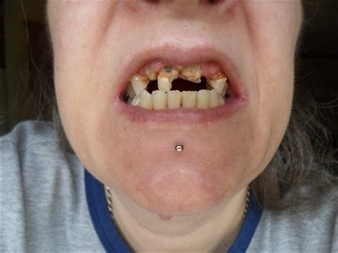 causes of teeth problems picture 5