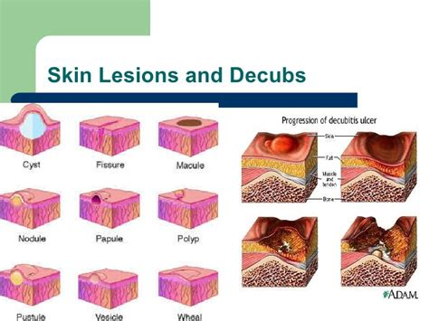 military service conected skin lesions picture 1