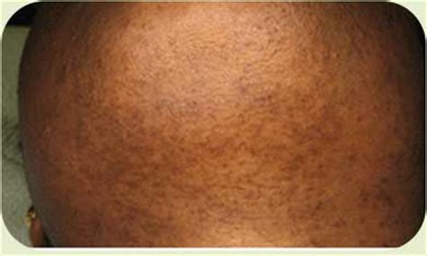 revitol hair removal and african american picture 10