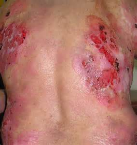 disease and fragile skin picture 7