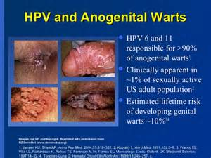 genital warts female picture 1