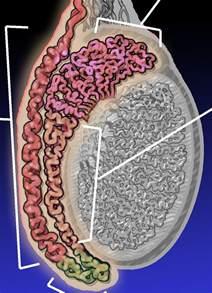 epididymitis in older men picture 1