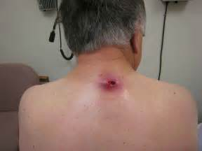 pilar cyst home remedy picture 11