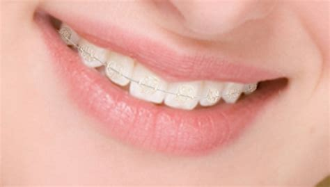 clear teeth brace picture 10