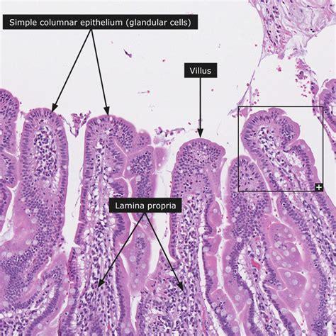 anatomy colon picture 13