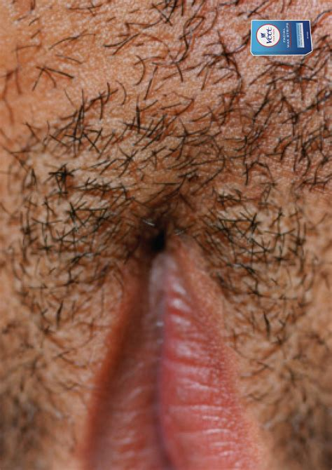 depilatory cream before after picture 9