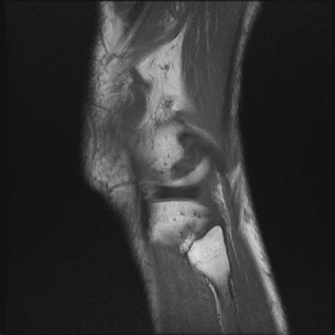 small knee joint effusion picture 11