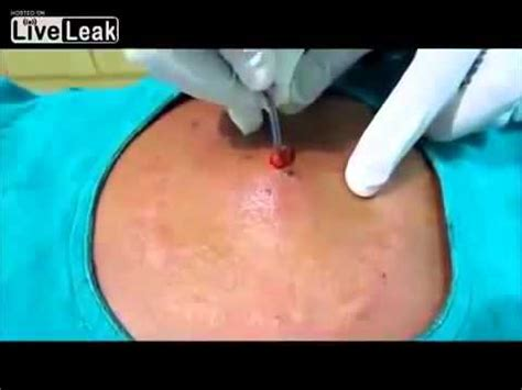 how to drain a cyst at home with picture 1