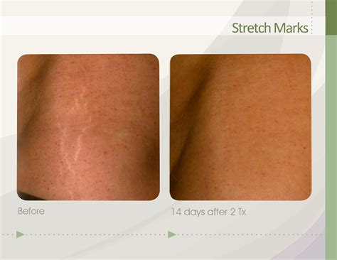 75 percent removal of stretch marks picture 5