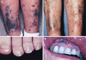 antibiotic side effects discoloring h picture 17