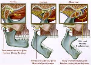 temporomandibular joint popping picture 7