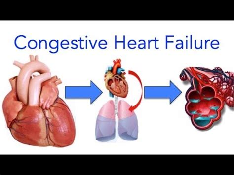 weight gain and heart failure picture 10