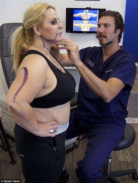 black neck under arm ki treatment by dr picture 23