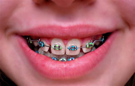 colored braces h picture 6