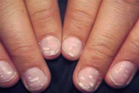 pictures of nail fungus picture 5