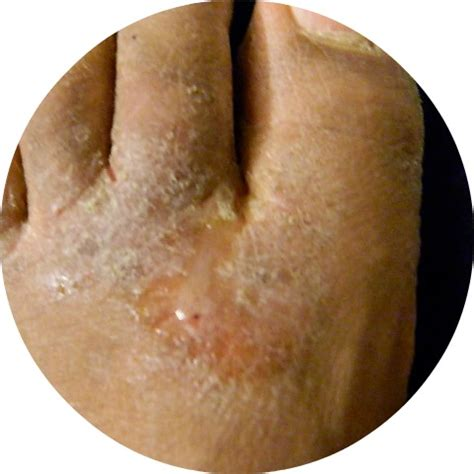 foot skin problems picture 11