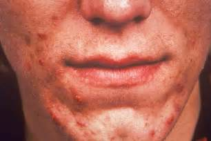 acne vulgaris pictures picture 3